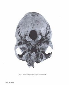 Occipital view. Click on image to enlarge.