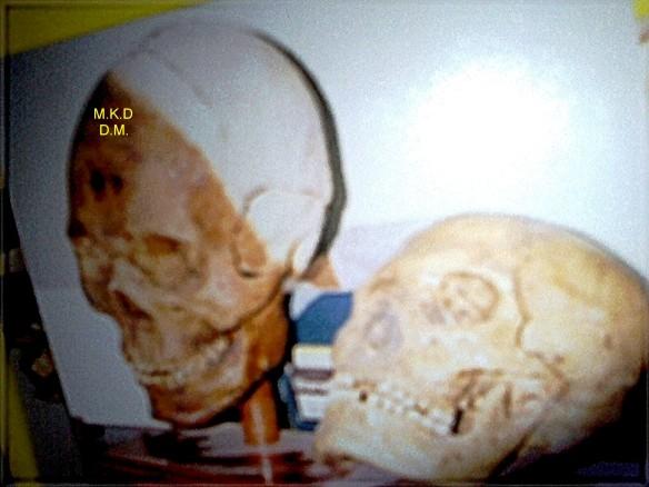 Big skull 2.jpg deblurred.jpg three times enhanced watermark